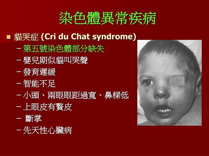 染色體異常疾病