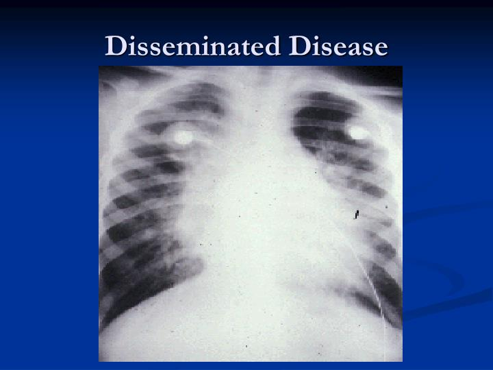 Disseminated Disease