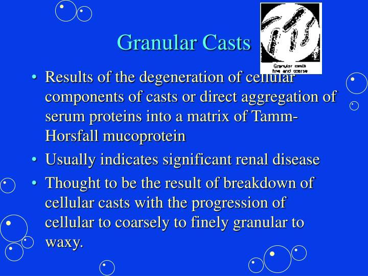 Granular Casts