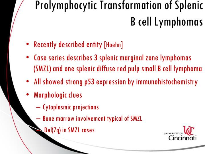 Prolymphocytic Transformation of Splenic B cell Lymphomas
