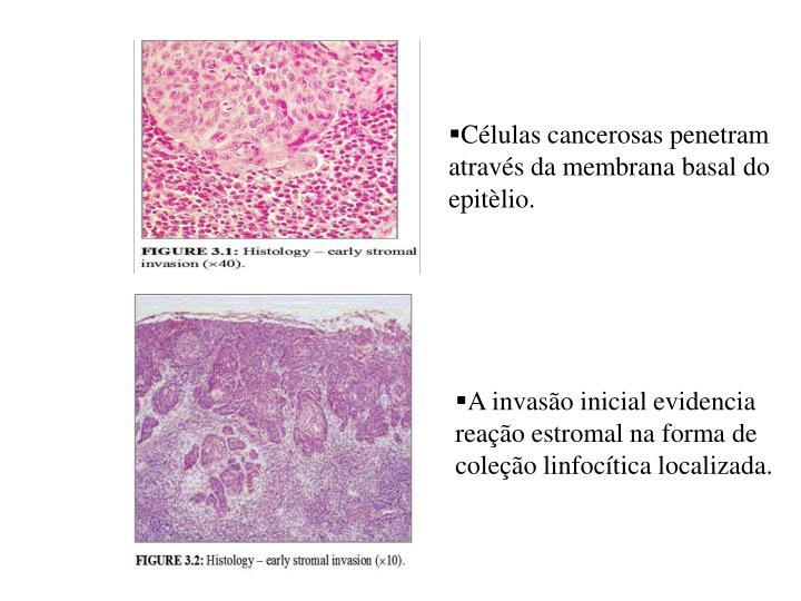 Células cancerosas penetram através da membrana basal do epitèlio.