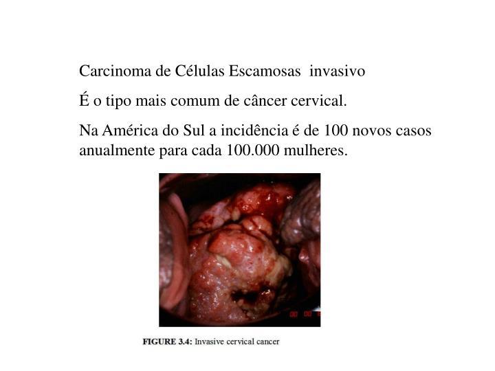 Carcinoma de Células Escamosas  invasivo
