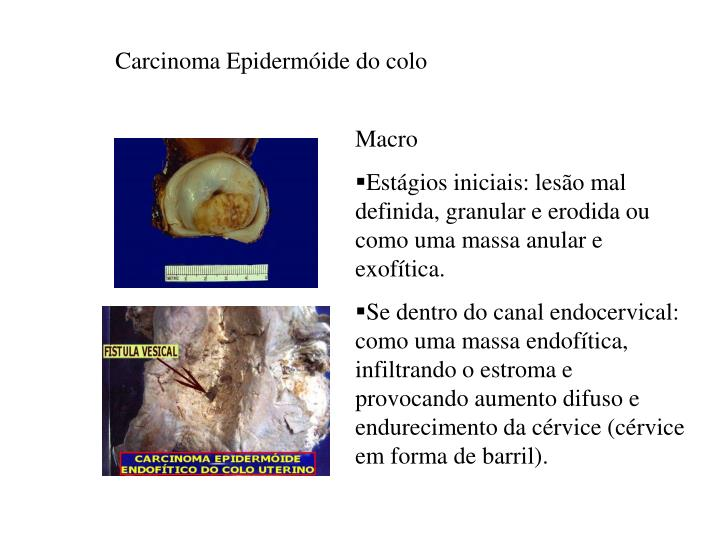 Carcinoma Epidermóide do colo