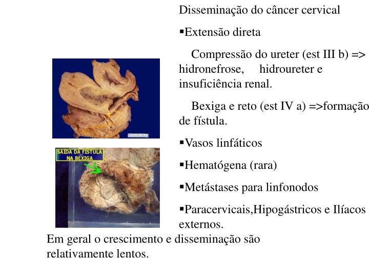 Disseminação do câncer cervical