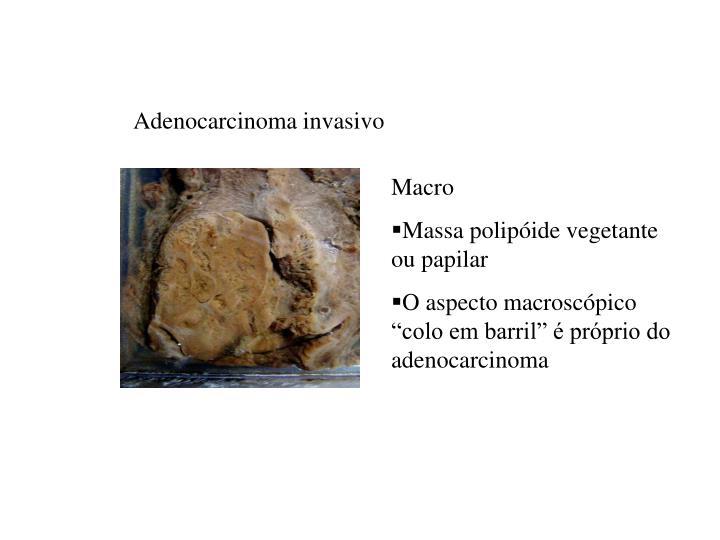Adenocarcinoma invasivo