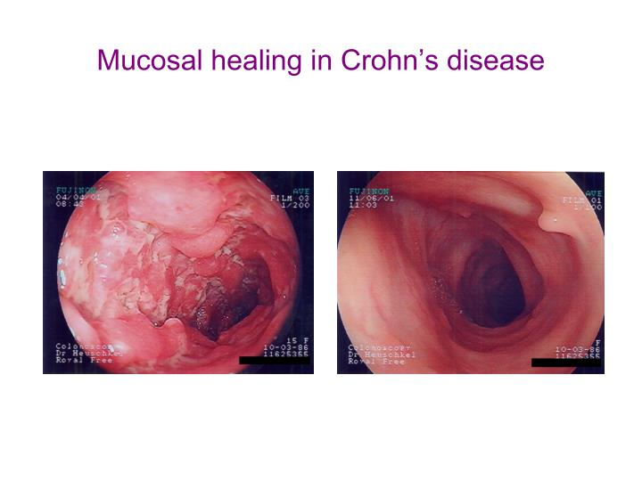 Mucosal healing in Crohn's disease