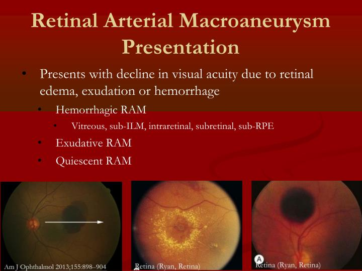 Retinal Arterial Macroaneurysm