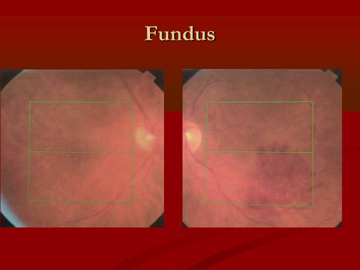Fundus