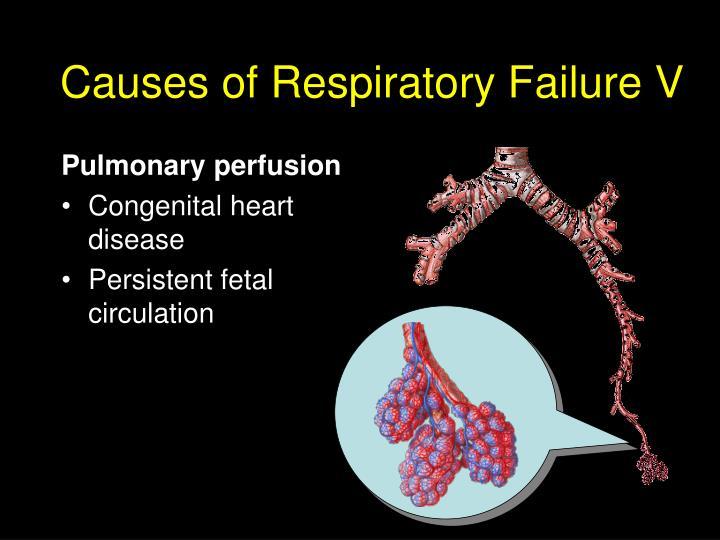 Pulmonary perfusion