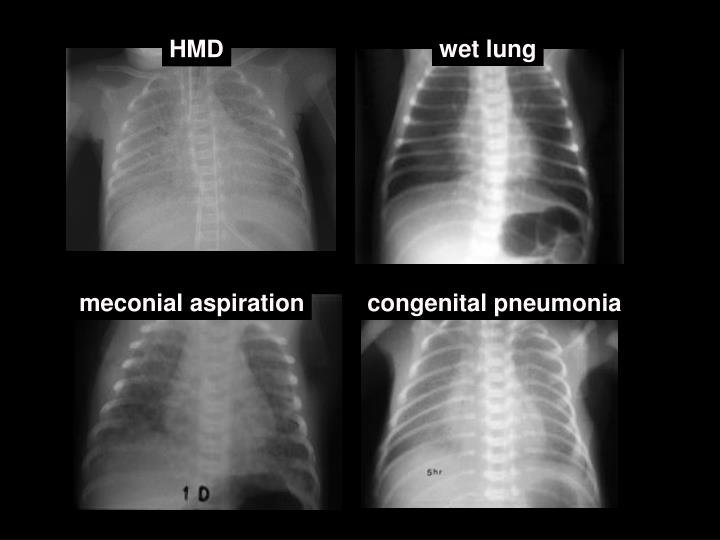 wet lung