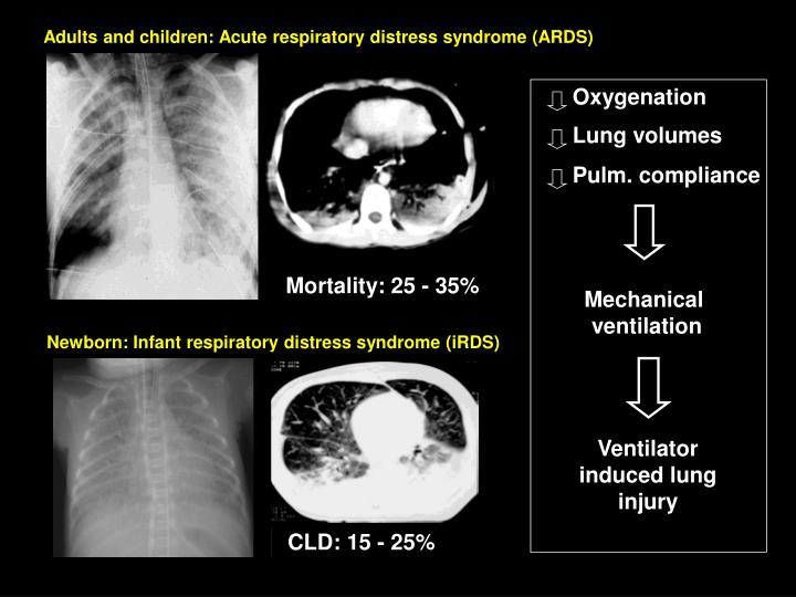 Adults and children: Acute respiratory distress syndrome (ARDS)