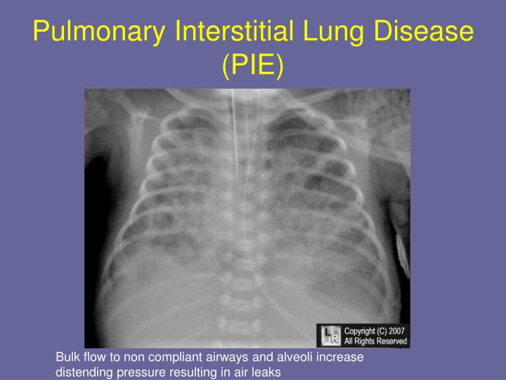 Pulmonary Interstitial Lung Disease (PIE)