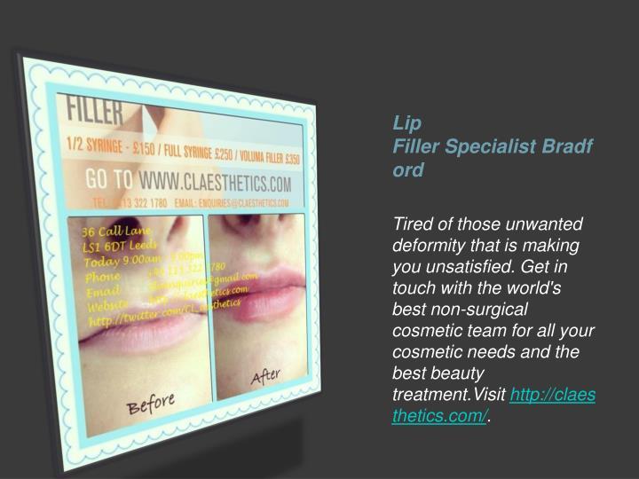 Lip FillerSpecialistBradford