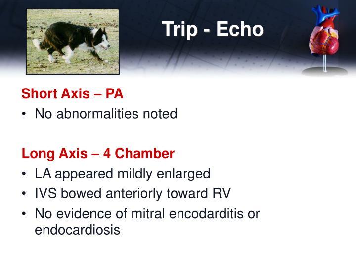 Trip - Echo