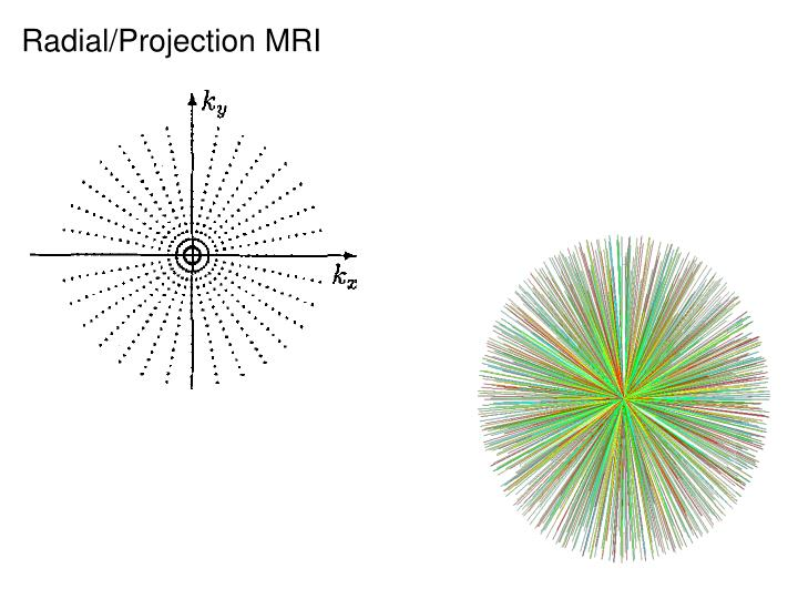Radial/Projection MRI