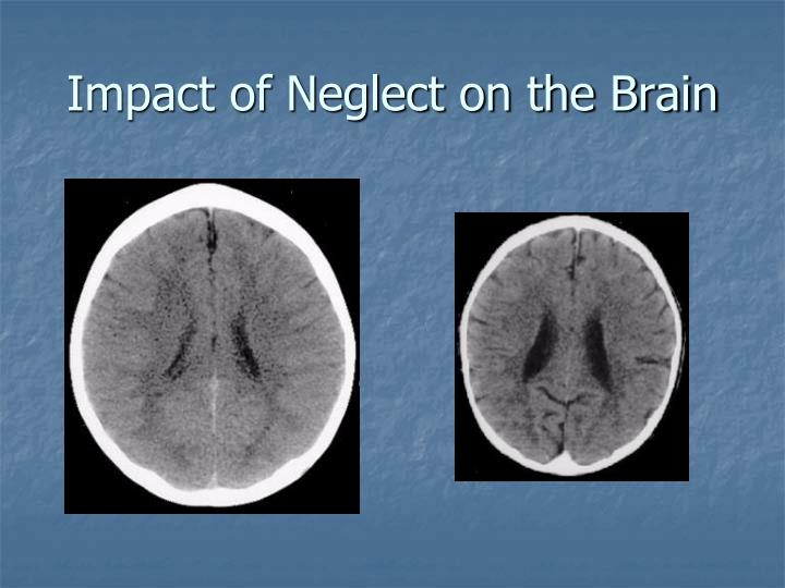 Impact of Neglect on the Brain
