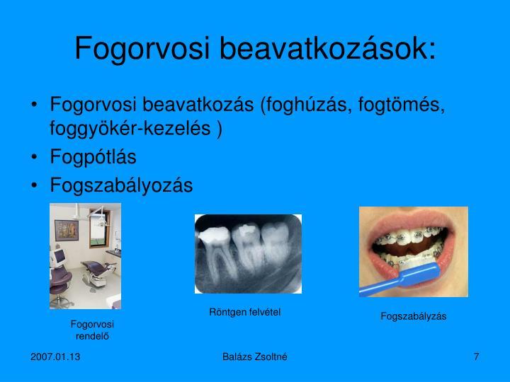 Fogorvosi beavatkozások: