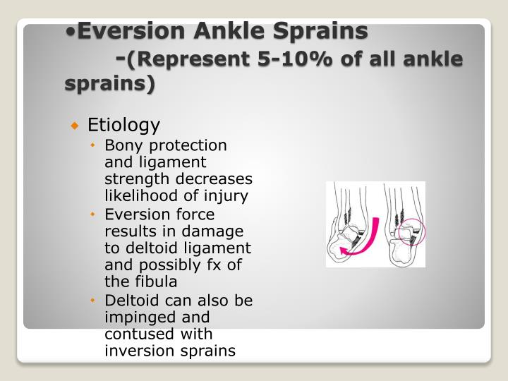 Eversion Ankle Sprains