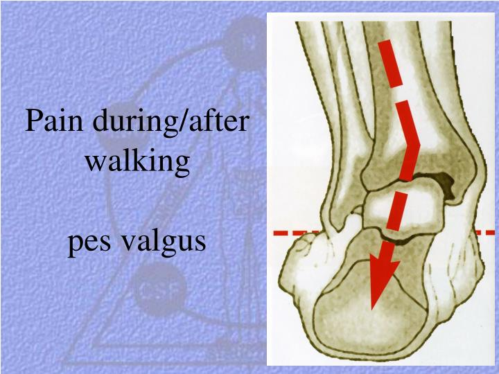 Pain during/after walking