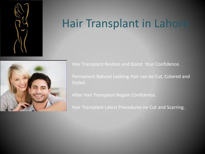 Hair Transplant in Lahore