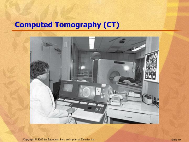 Computed Tomography (CT)
