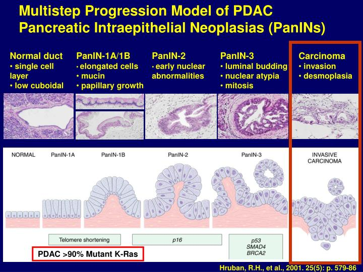 Multistep Progression Model of PDAC