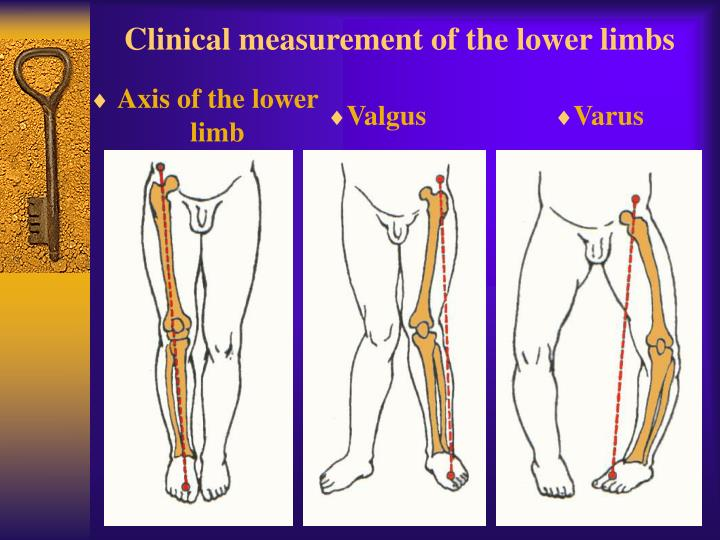 Clinical measurement of the lower limbs
