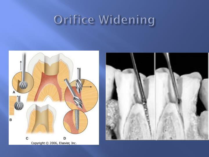 Orifice Widening