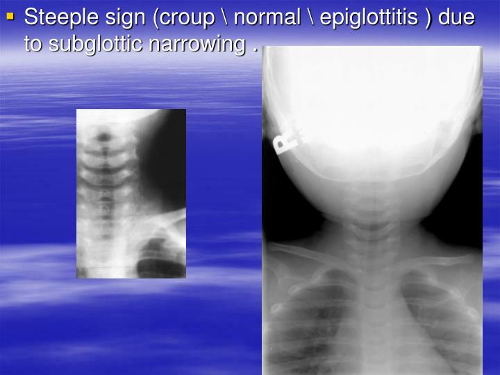 Steeple sign (croup \ normal \ epiglottitis ) due to subglottic narrowing .