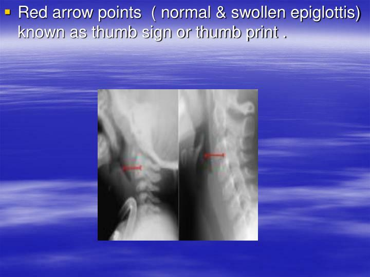 Red arrow points  ( normal & swollen epiglottis)     known as thumb sign or thumb print .