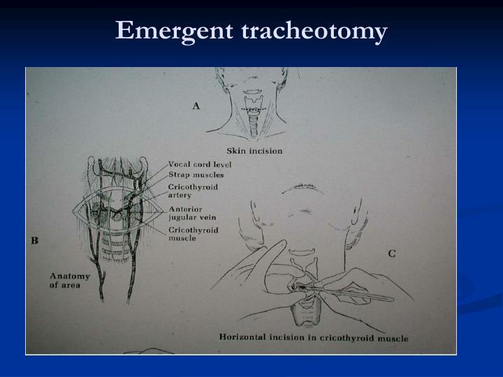 Emergent tracheotomy