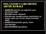 melanomun 6 bel rt s abcde kurali