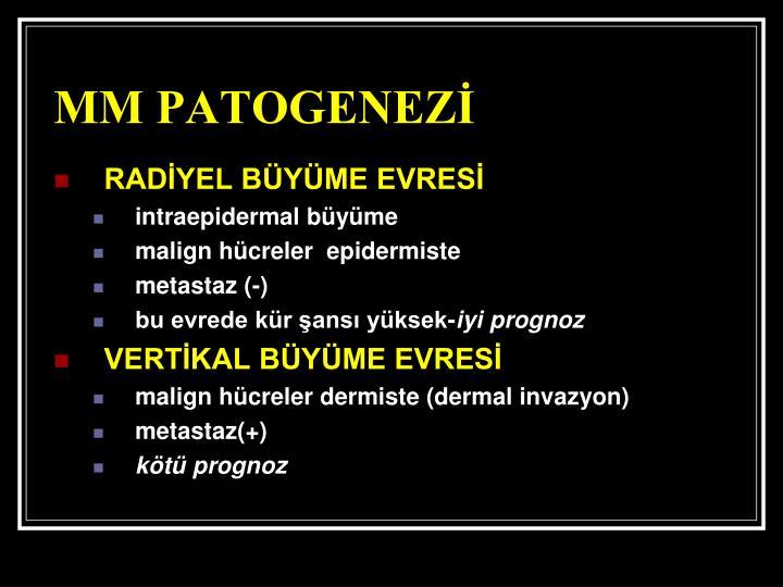 MM PATOGENEZİ