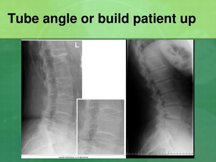Tube angle or build patient up