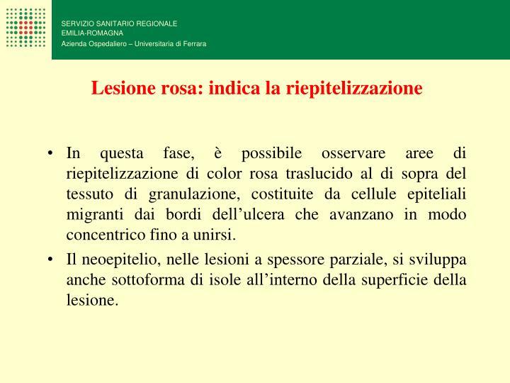 Lesione rosa: indica la riepitelizzazione