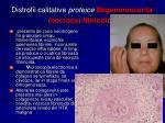 distrofii calitative proteice degenerescenta necroza fibrinoida