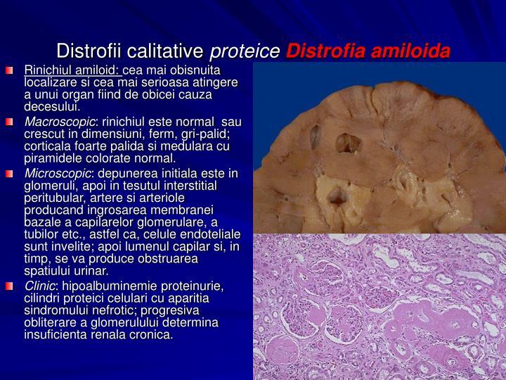 Rinichiul amiloid: