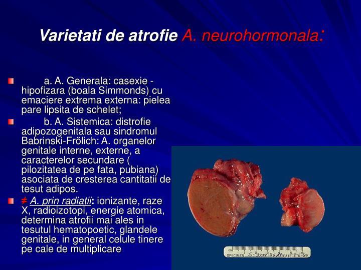 a. A. Generala: casexie - hipofizara (boala Simmonds) cu emaciere extrema externa: pielea pare lipsita de schelet;