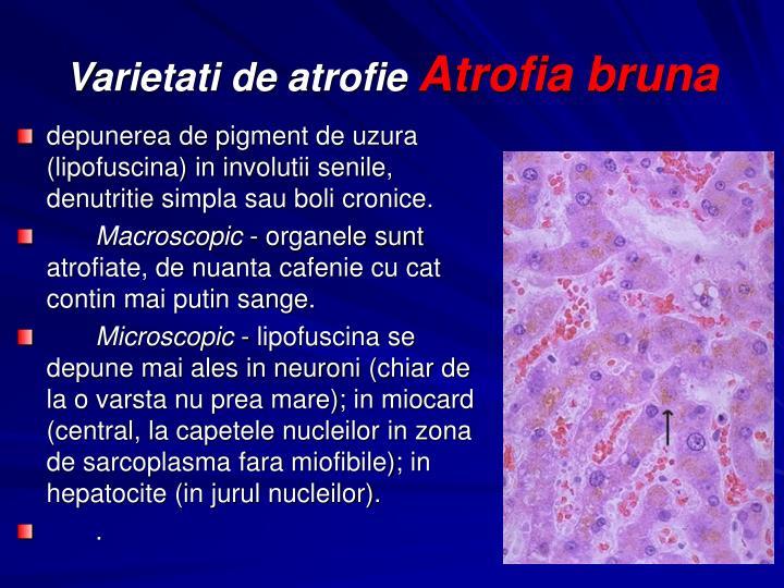 depunerea de pigment de uzura (lipofuscina) in involutii senile, denutritie simpla sau boli cronice.