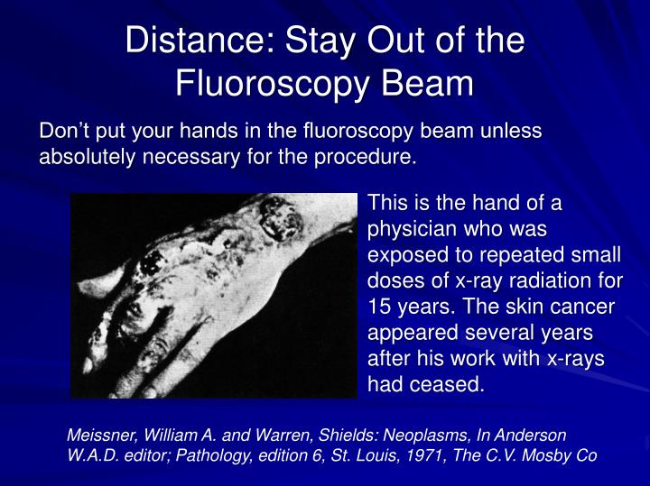 Distance: Stay Out of the Fluoroscopy Beam