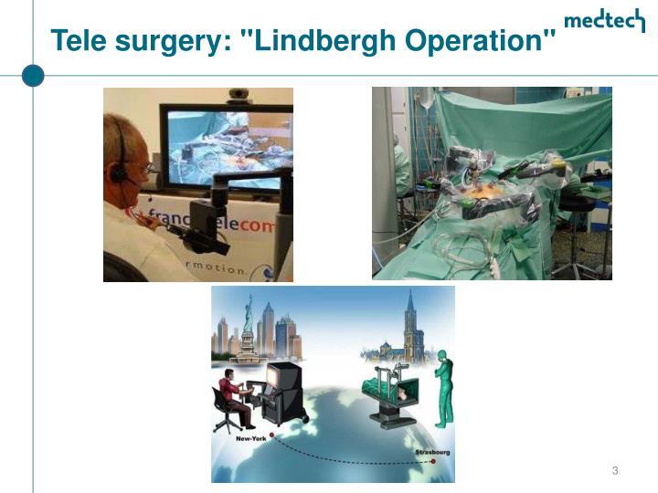 "Tele surgery: ""Lindbergh Operation"""