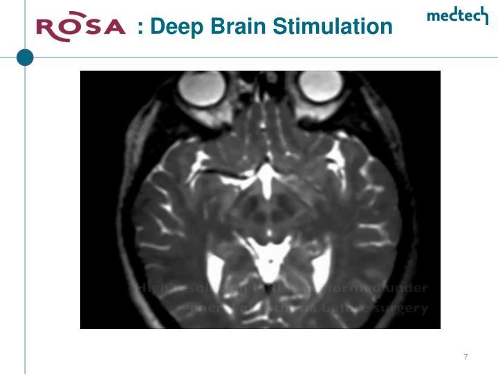 : Deep Brain Stimulation