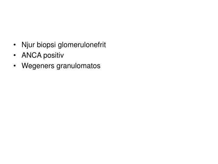 Njur biopsi glomerulonefrit