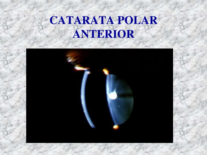 CATARATA POLAR ANTERIOR