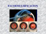 facoemulsificacion