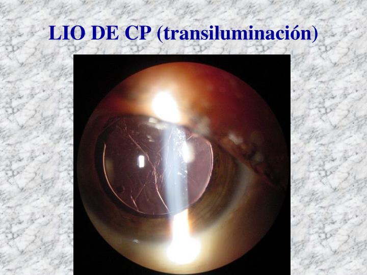 LIO DE CP (transiluminación)