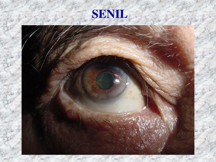 SENIL