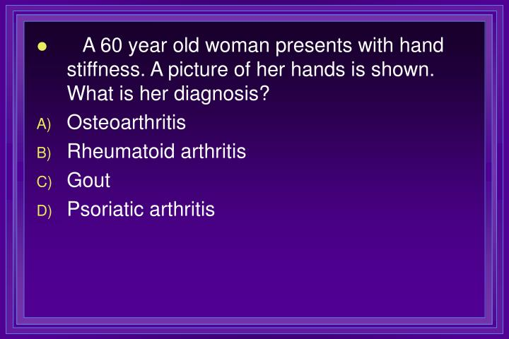 A 60 year old woman presents with hand stiffness. A picture of her hands is shown. What is her diagnosis?