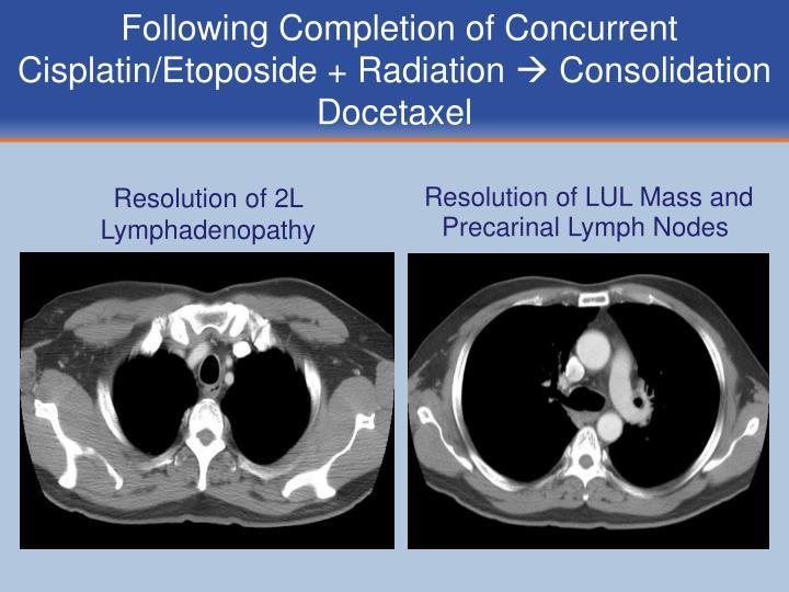 Resolution of 2L Lymphadenopathy