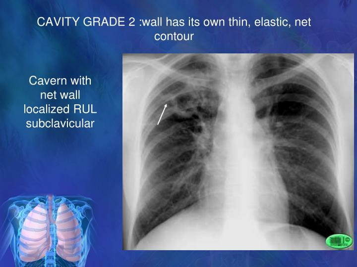 CAVITY GRADE 2 :wall has its own thin, elastic, net contour